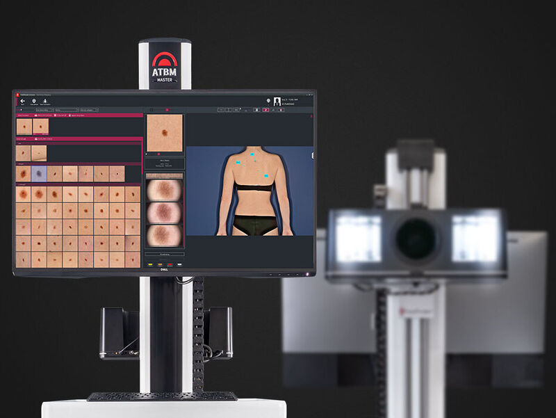 fotofinder skin cancer screening