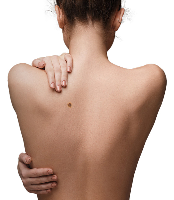 skin-cancer-womans-back